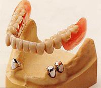「茶筒の原理」を利用したコーヌスクローネ義歯