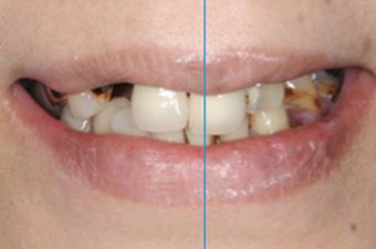 正中線と歯並びのバランス(Median line)