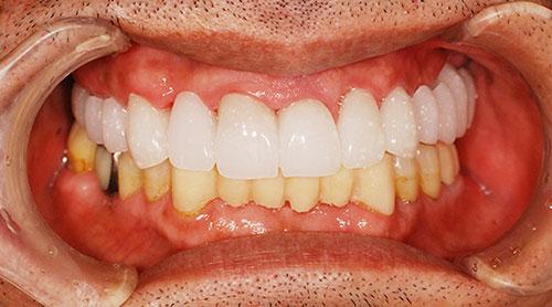「仮歯」を用いた最終調整