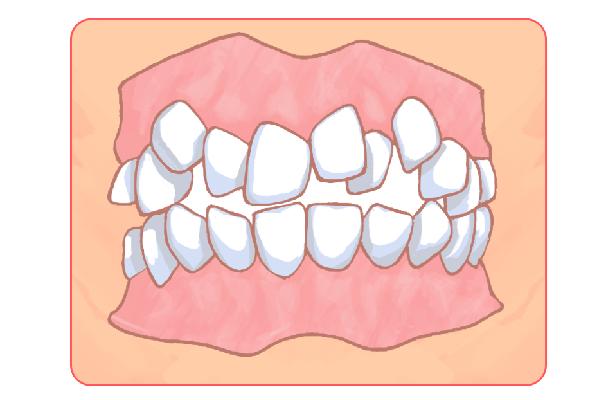 子供の「歯並び矯正」にも対応しています!